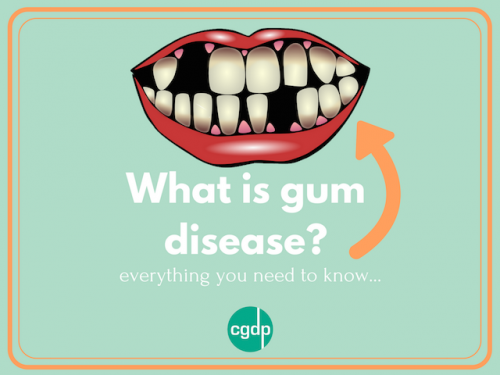 Gum disease – everything you need to know