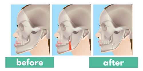 How jaw surgery can change your life