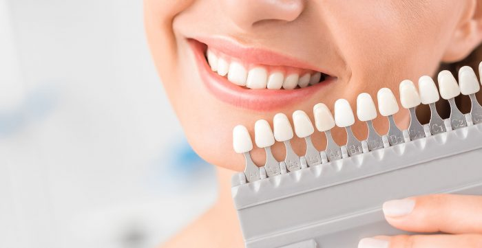 7 causes of yellow teeth